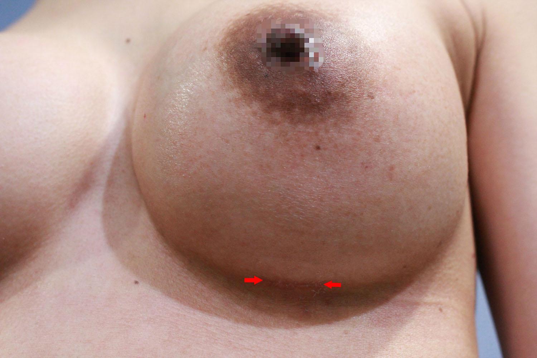 經胸下Motiva魔滴隆乳,手術後2周,傷口可以小於3公分