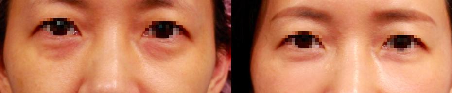 眼袋內開+自體脂肪填補,改善黑眼圈