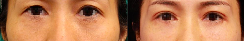 眼袋外開+自體脂肪填補,改善黑眼圈
