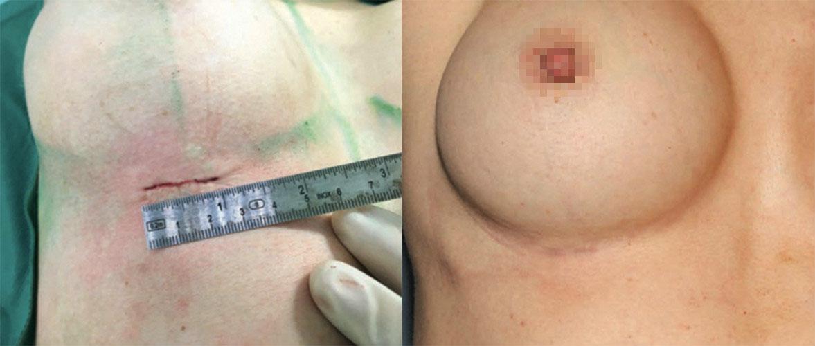 使用魔滴隆乳,可以有效所小傷口大小,這裡以胸下緣傷口為例,可以在2~2.5公分