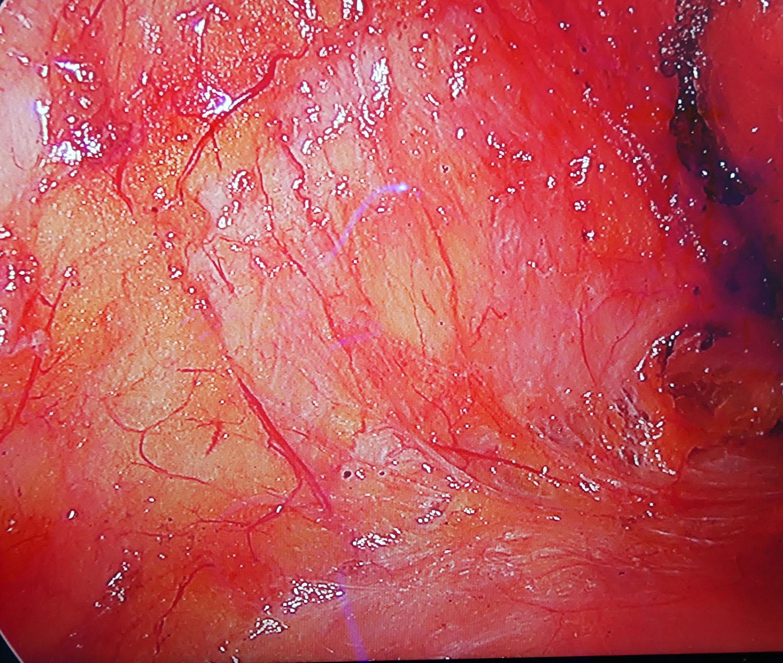 在全程內視鏡的隆乳下,手術視野應該幾乎不出血,乾淨且精確地分離胸部的層次