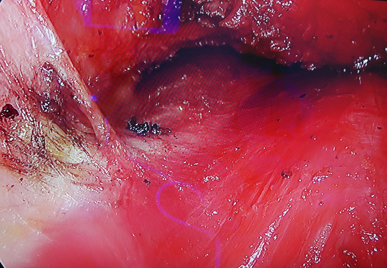 乳房及乳頭的感覺主要由外側多條神經來支配,手術時候應該在內視鏡下小心保留下來,以達到安全隆乳的保障