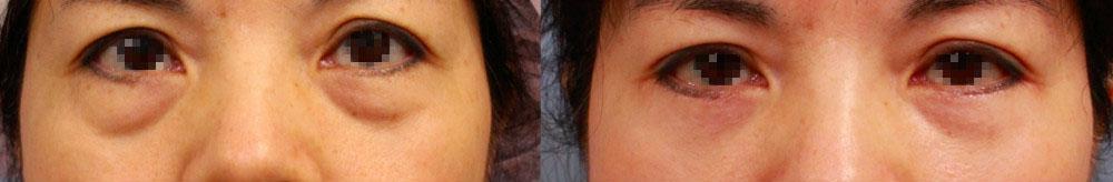 以前眼袋開刀常常忽略脂肪填補的重要性,手術後雖然改善,但仍然留下部分凹陷淚溝