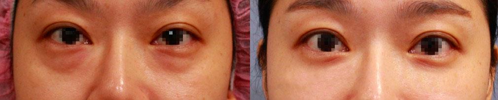 眼袋處理的新概念,就是合併自體脂肪移植,同時矯正淺/中/深層凹陷的問題