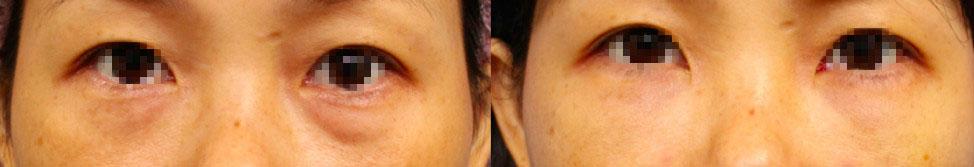 客人接受眼袋內開合併自體脂肪的複合式手術前後