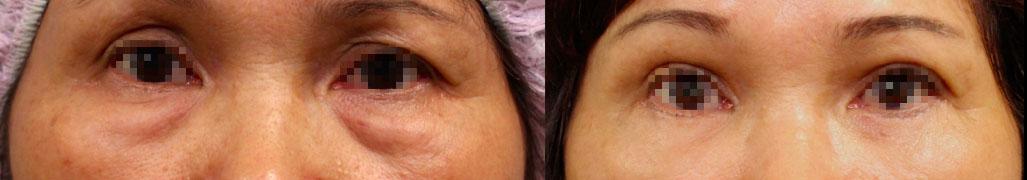 客人接受眼袋外開合併自體脂肪的複合式手術前後