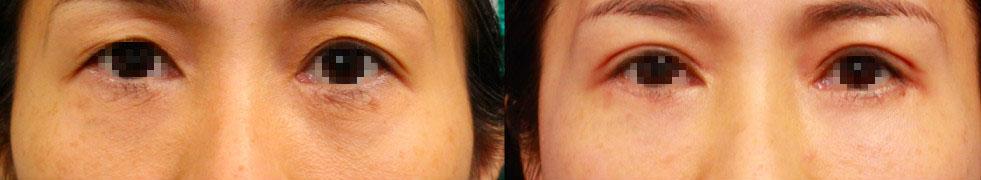 客人接受上下眼皮合併自體脂肪的複合式手術前後
