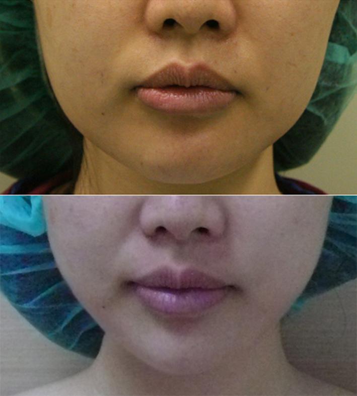客人接受下顎角截骨手術前後